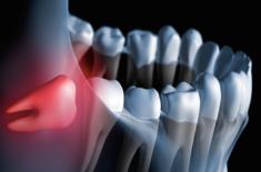 Wisdom Teeth Removal | Simple, Affordable