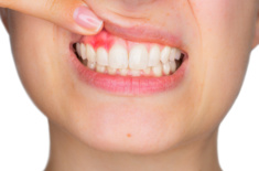 Just What is Gingivitis? Causes and Prevention